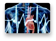 heart attacks essay Bring up a heart disease and most people start thinking of a heart attack but in reality, a heart disease consists more than just a heart attack heart at.