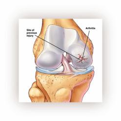 Деформирующий остеоартроз.Артроз.