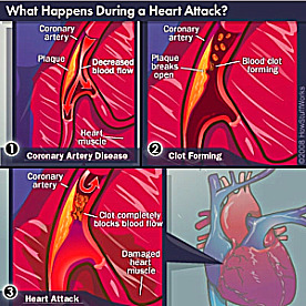 Coronary heart disease causes heres what happens during a heart attack ccuart Images